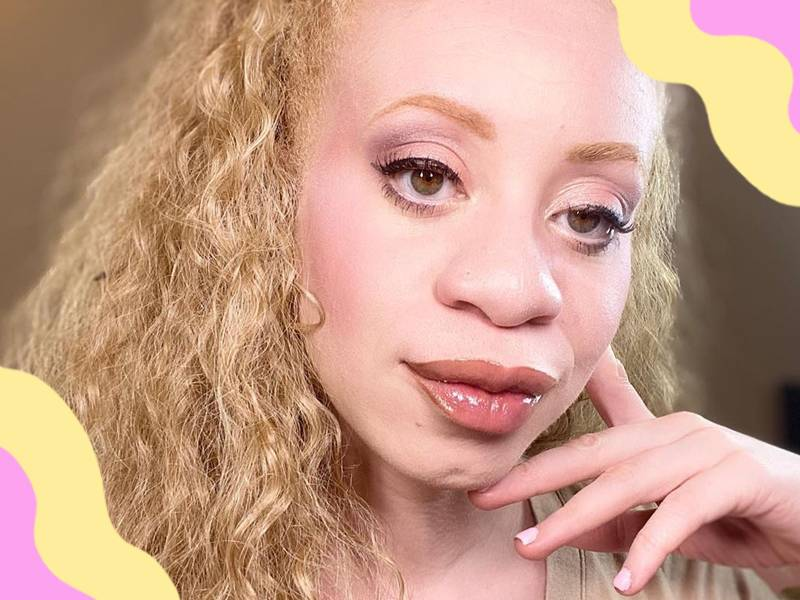 Albino Beauty Influencer